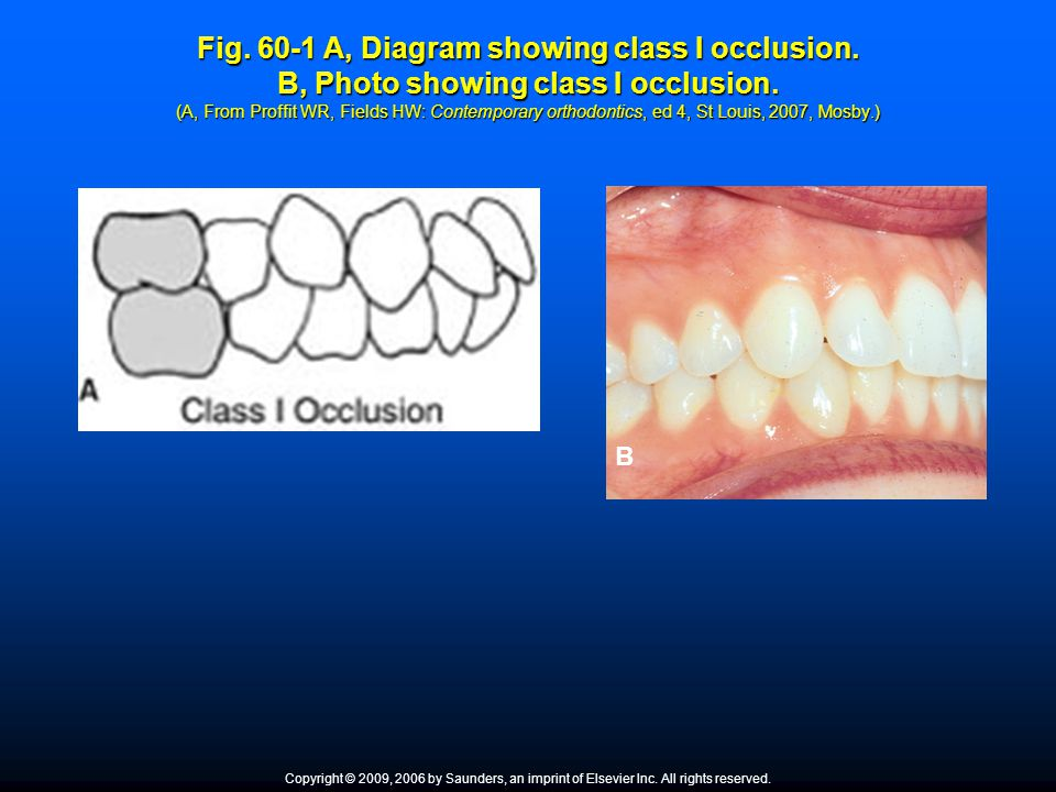 Fig. 60-1 A, Diagram showing class I occlusion