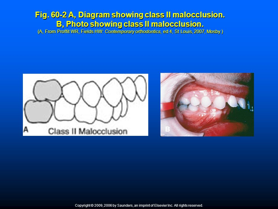Fig. 60-2 A, Diagram showing class II malocclusion