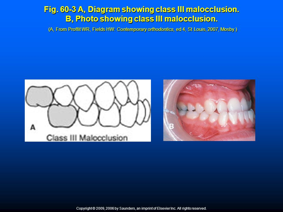 Fig. 60-3 A, Diagram showing class III malocclusion