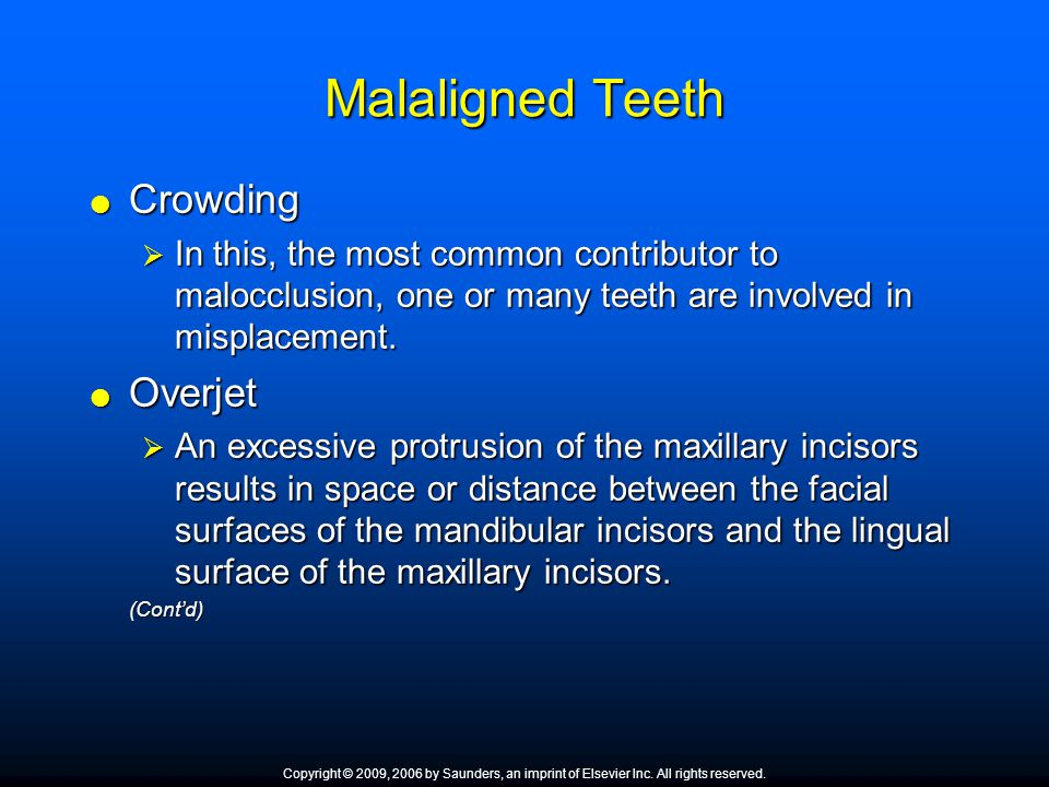 Malaligned Teeth Crowding Overjet