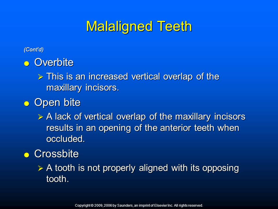 Malaligned Teeth Overbite Open bite Crossbite