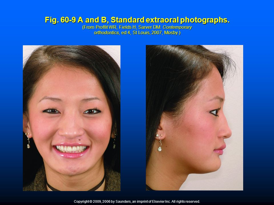 Fig. 60-9 A and B, Standard extraoral photographs