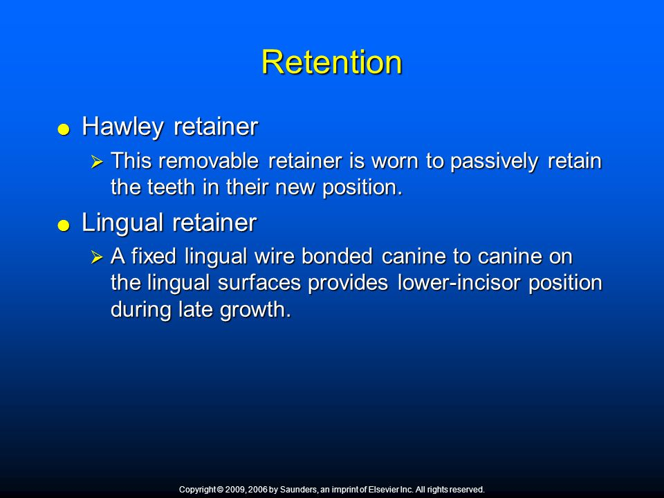 Retention Hawley retainer Lingual retainer