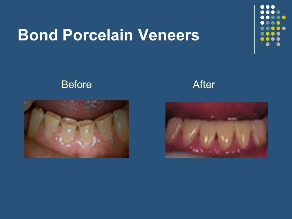 Bond Porcelain Veneers