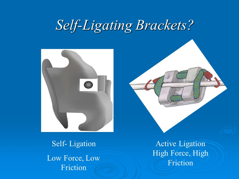 Self-Ligating Brackets