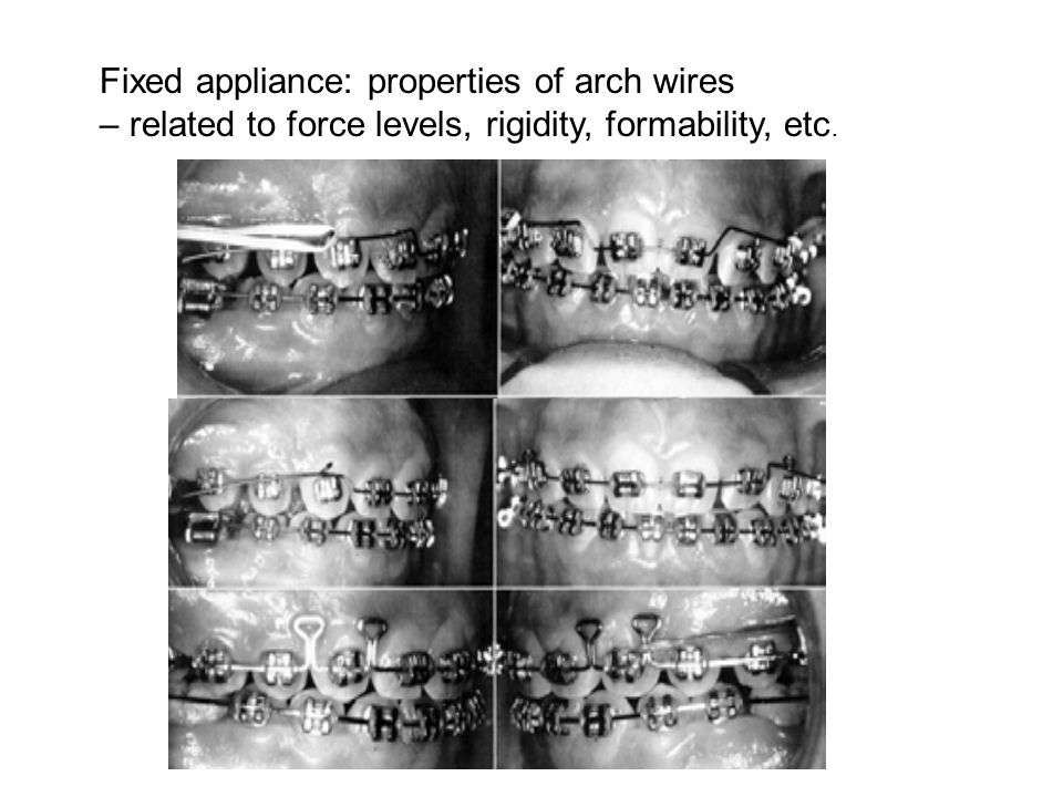 Fixed appliance: properties of arch wires