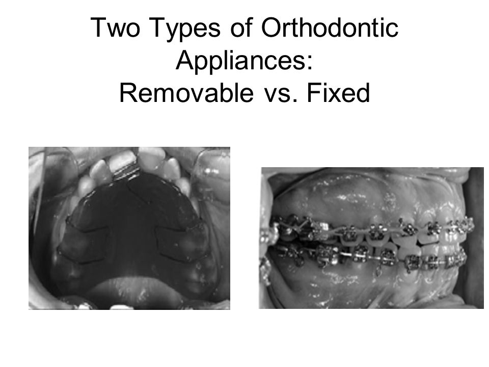 Two Types of Orthodontic Appliances: Removable vs. Fixed
