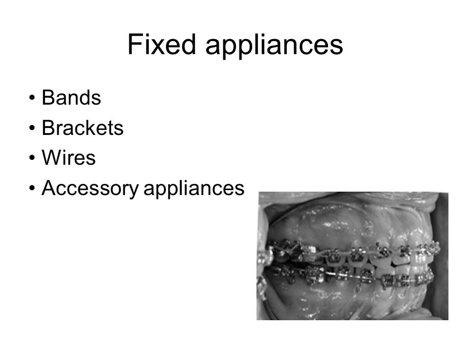 Fixed appliances • Bands • Brackets • Wires • Accessory appliances