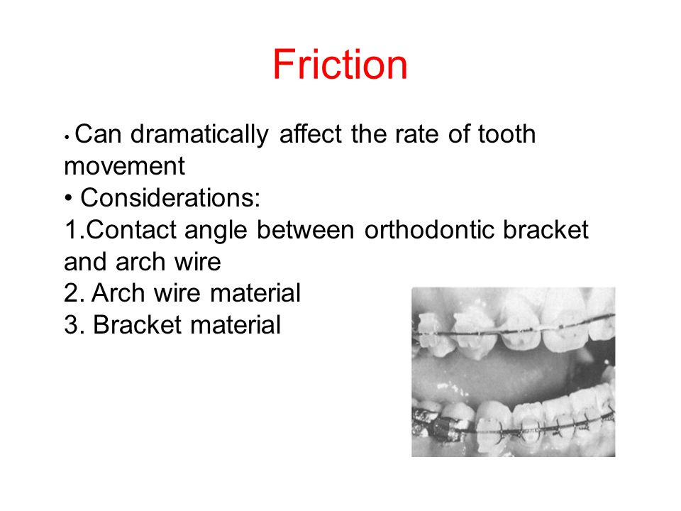 Friction • Considerations: