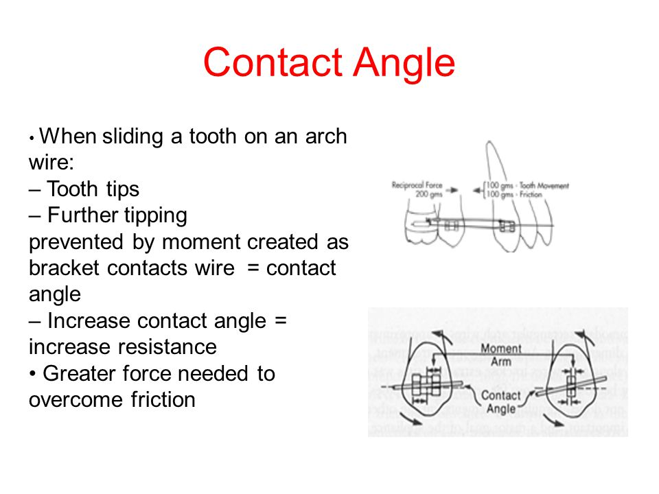 Contact Angle – Tooth tips – Further tipping