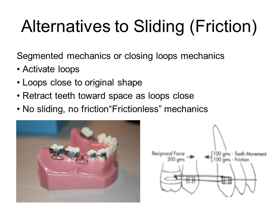 Alternatives to Sliding (Friction)