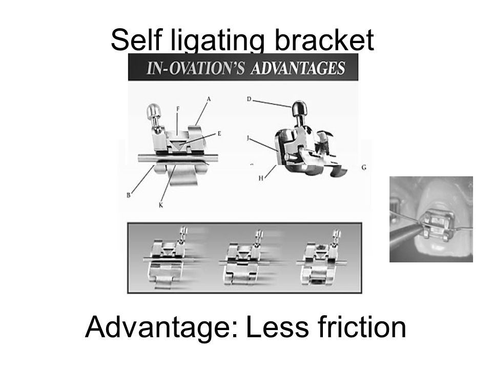 Advantage: Less friction