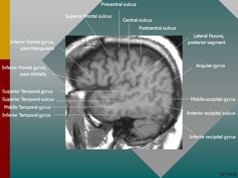 Precentral sulcus Superior frontal sulcus. Central sulcus. Postcentral sulcus. Lateral fissure, posterior segment.