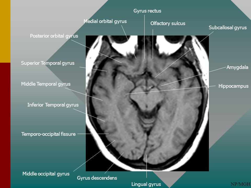 Gyrus rectus Medial orbital gyrus. Olfactory sulcus. Subcallosal gyrus. Posterior orbital gyrus.
