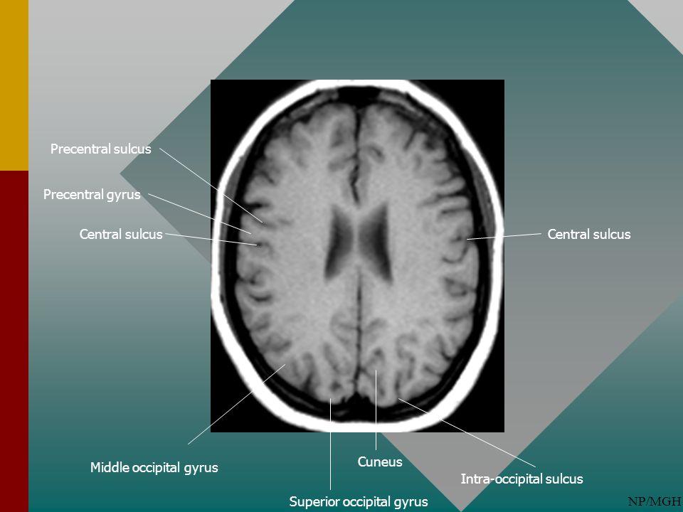Precentral sulcus Precentral gyrus. Central sulcus. Central sulcus. Cuneus. Middle occipital gyrus.