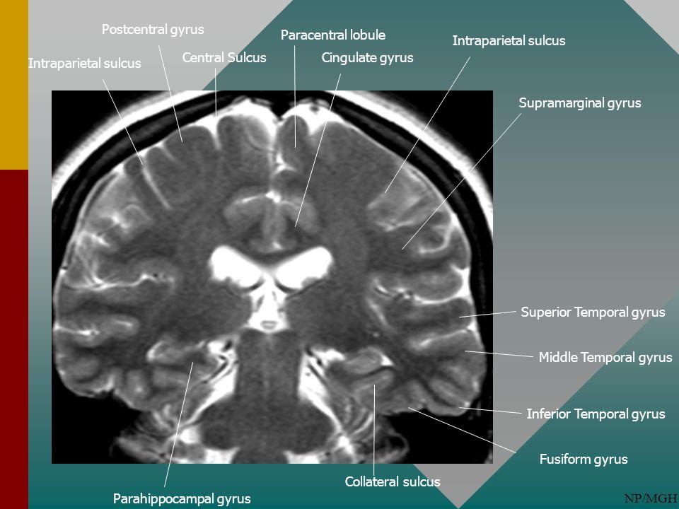 Postcentral gyrus Paracentral lobule. Intraparietal sulcus. Central Sulcus. Cingulate gyrus. Intraparietal sulcus.
