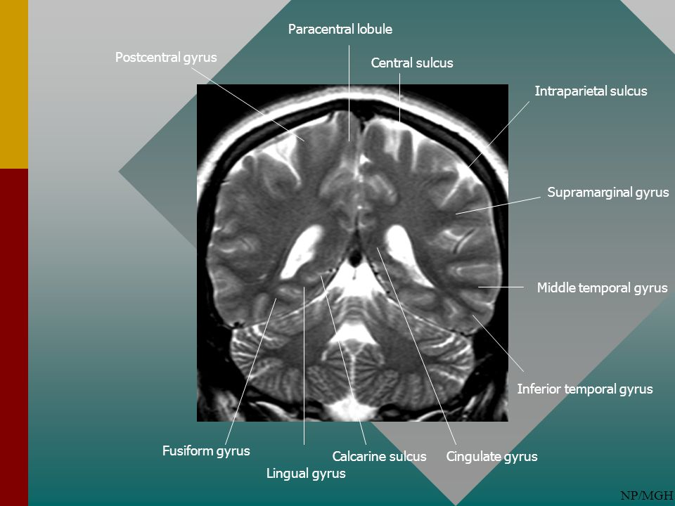 Paracentral lobule Postcentral gyrus. Central sulcus. Intraparietal sulcus. Supramarginal gyrus.