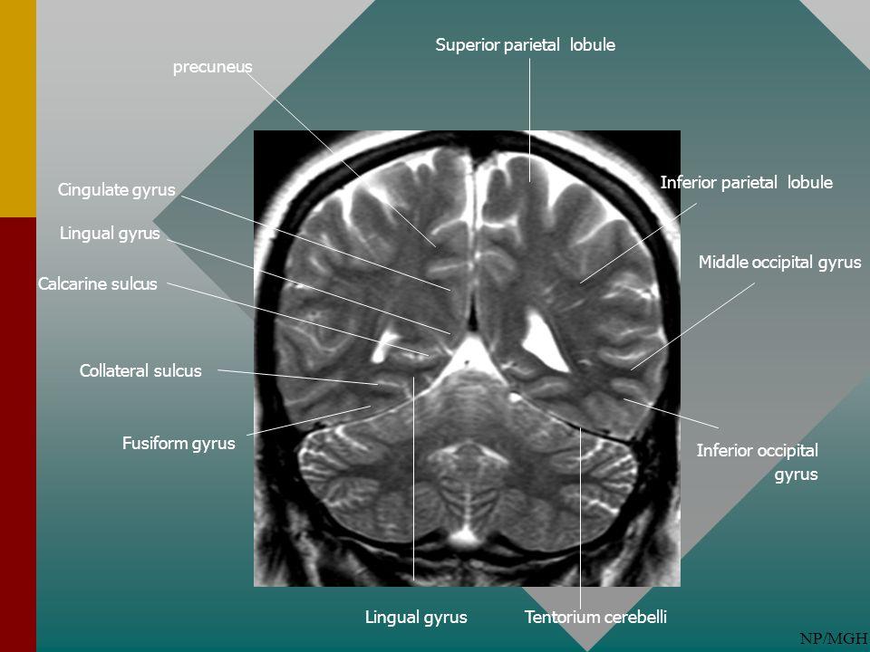 Superior parietal lobule