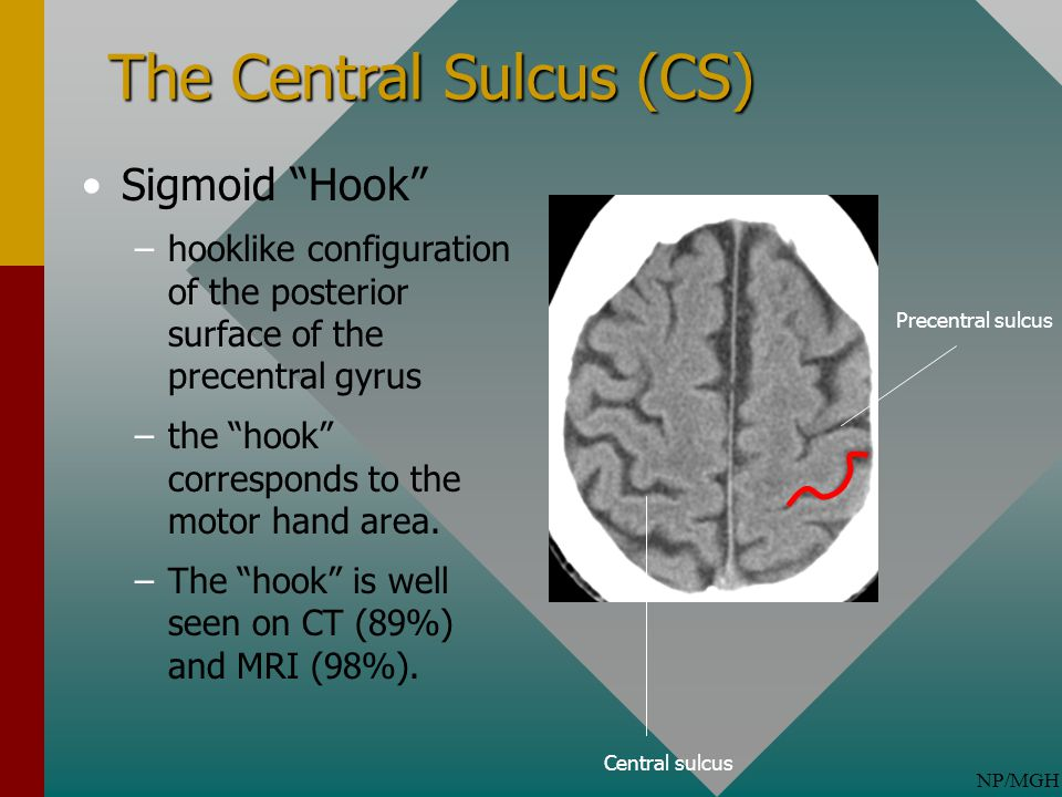 The Central Sulcus (CS)