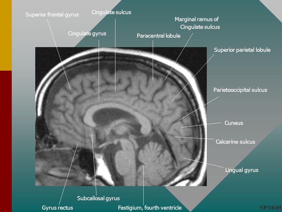 Cingulate sulcus Superior frontal gyrus. Marginal ramus of. Cingulate sulcus. Cingulate gyrus. Paracentral lobule.