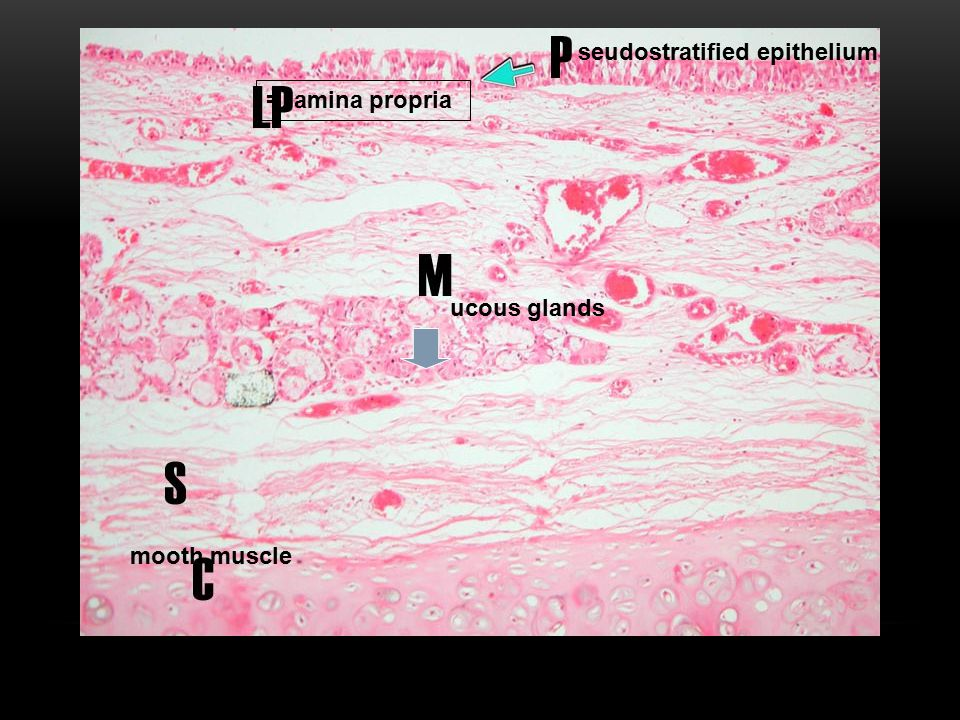 seudostratified epithelium