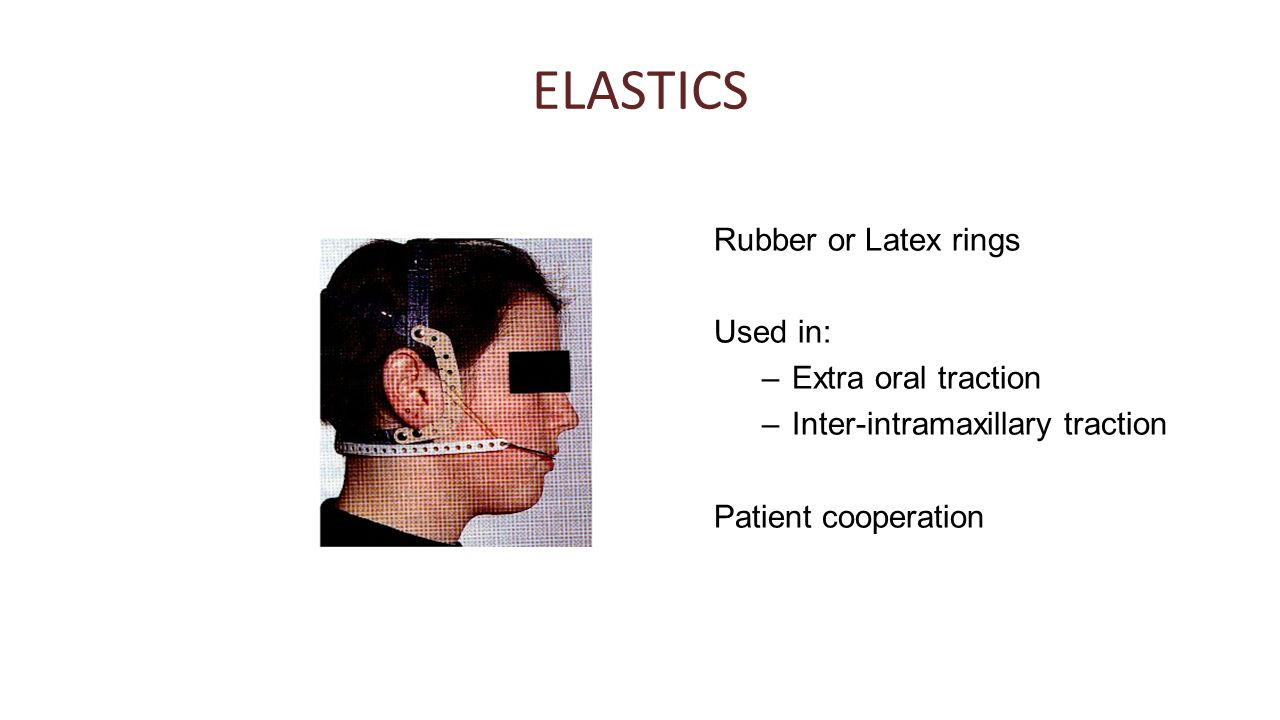 ELASTICS Rubber or Latex rings Used in: Extra oral traction