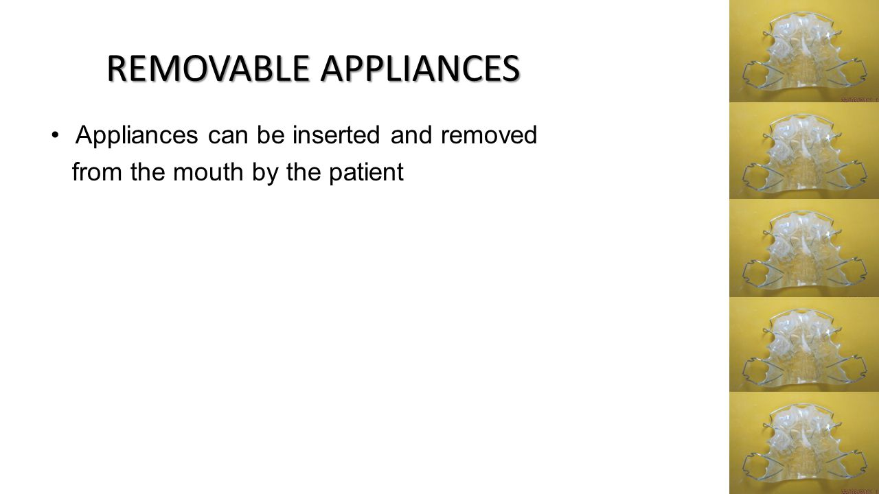 REMOVABLE APPLIANCES Appliances can be inserted and removed