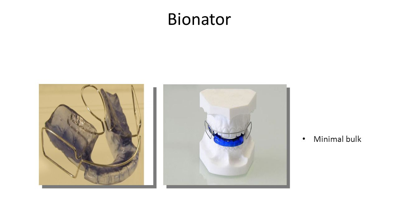 Bionator Minimal bulk