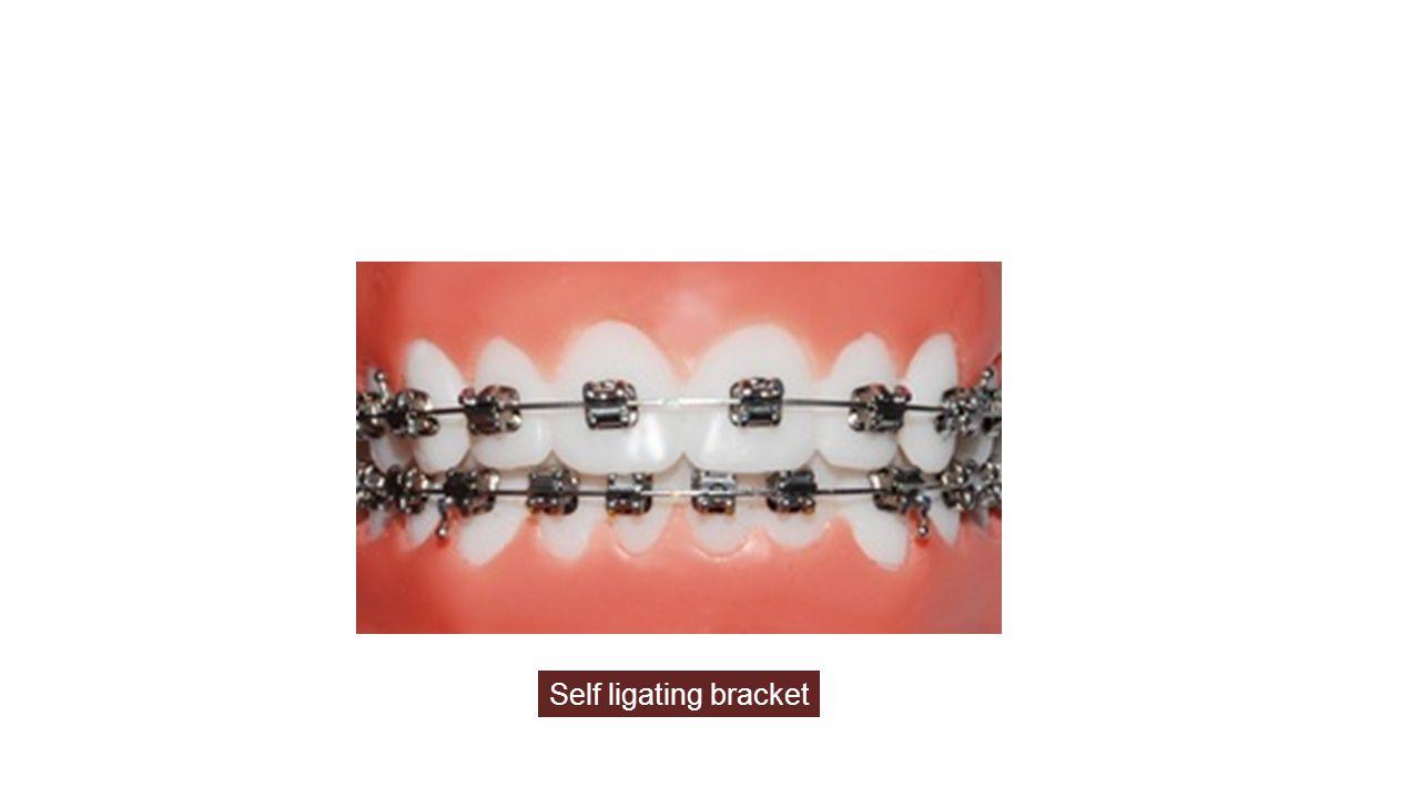 Self ligating bracket