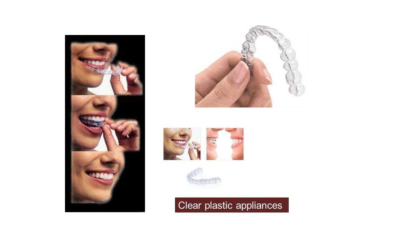Clear plastic appliances