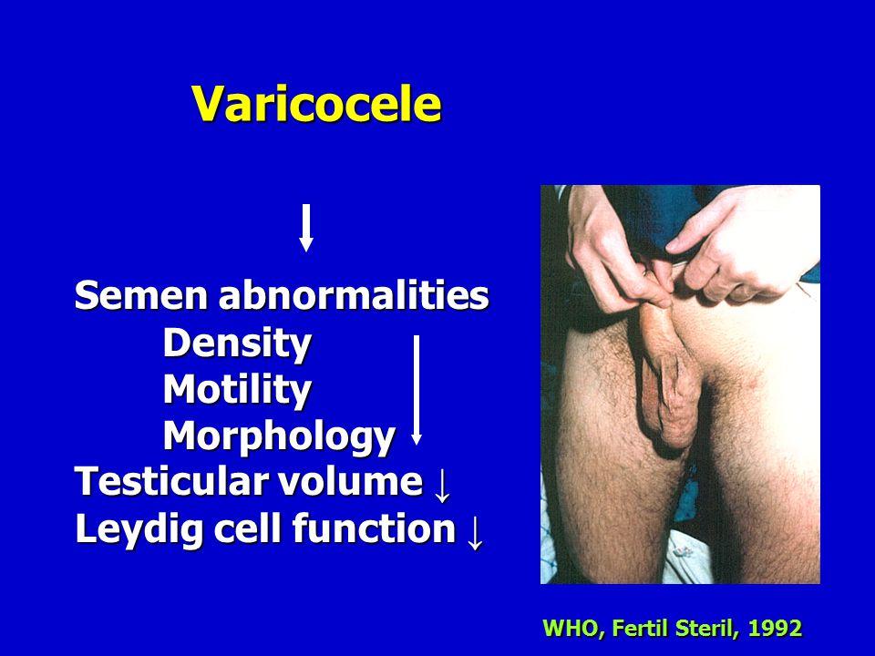 Varicocele Semen abnormalities Density Motility Morphology