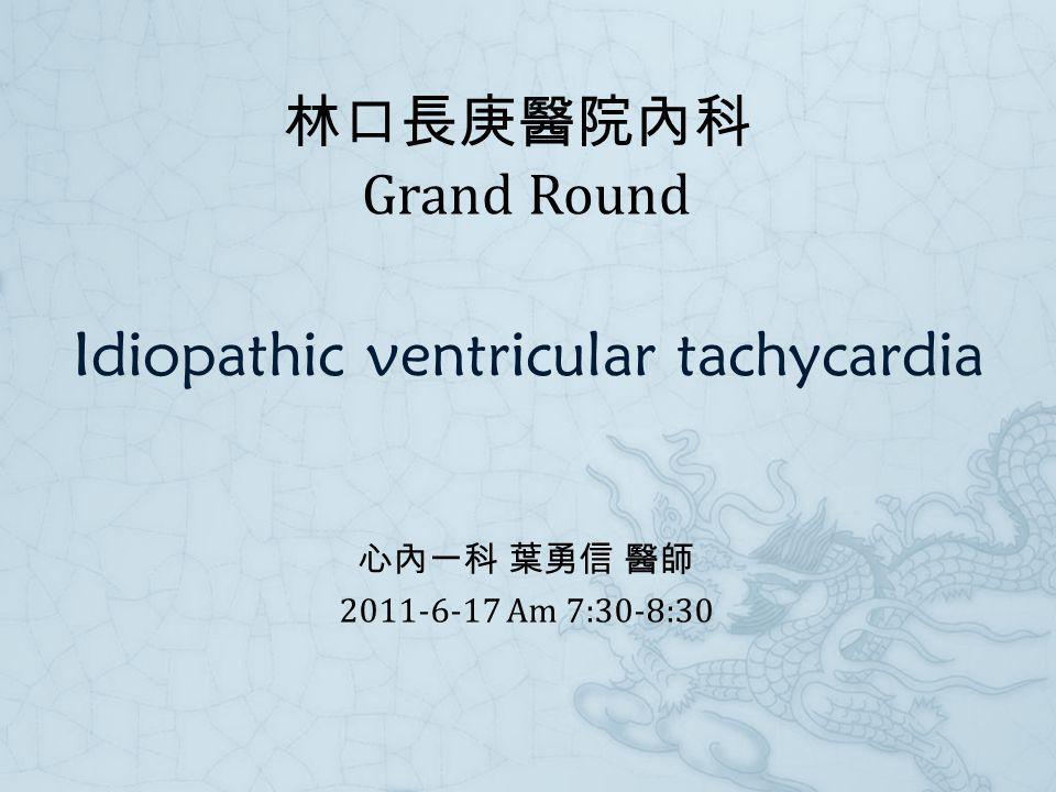 Idiopathic ventricular tachycardia