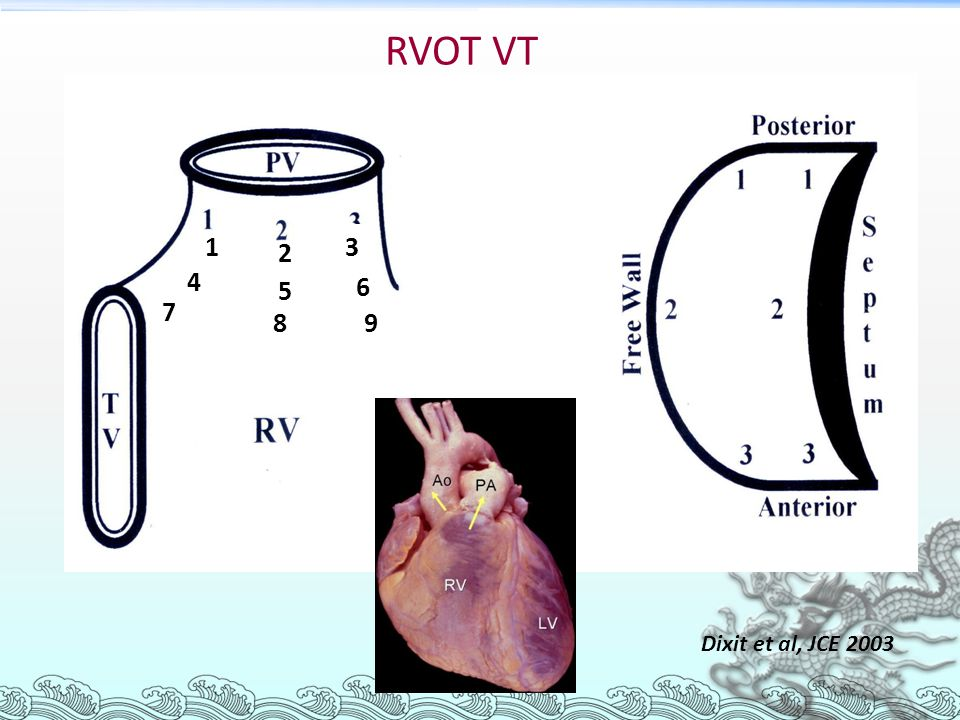 RVOT VT 3 1 2 4 5 6 7 8 9 Dixit et al, JCE 2003