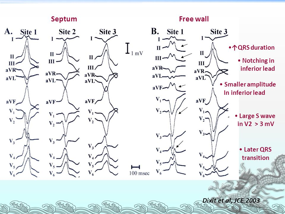 Septum Free wall Smaller amplitude Later QRS Dixit et al, JCE 2003