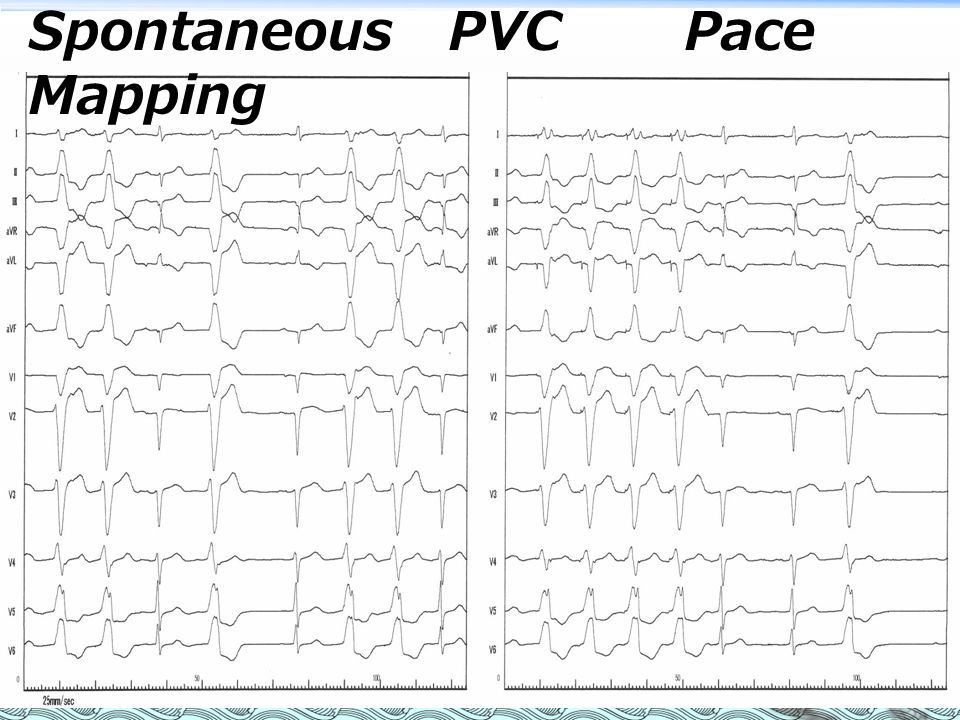 Spontaneous PVC Pace Mapping