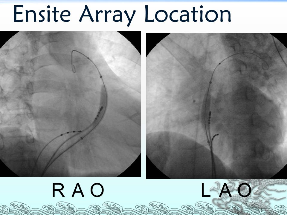 Ensite Array Location RAO LAO