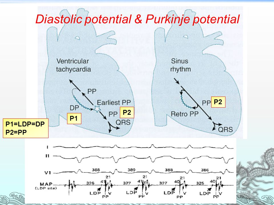 Diastolic potential & Purkinje potential