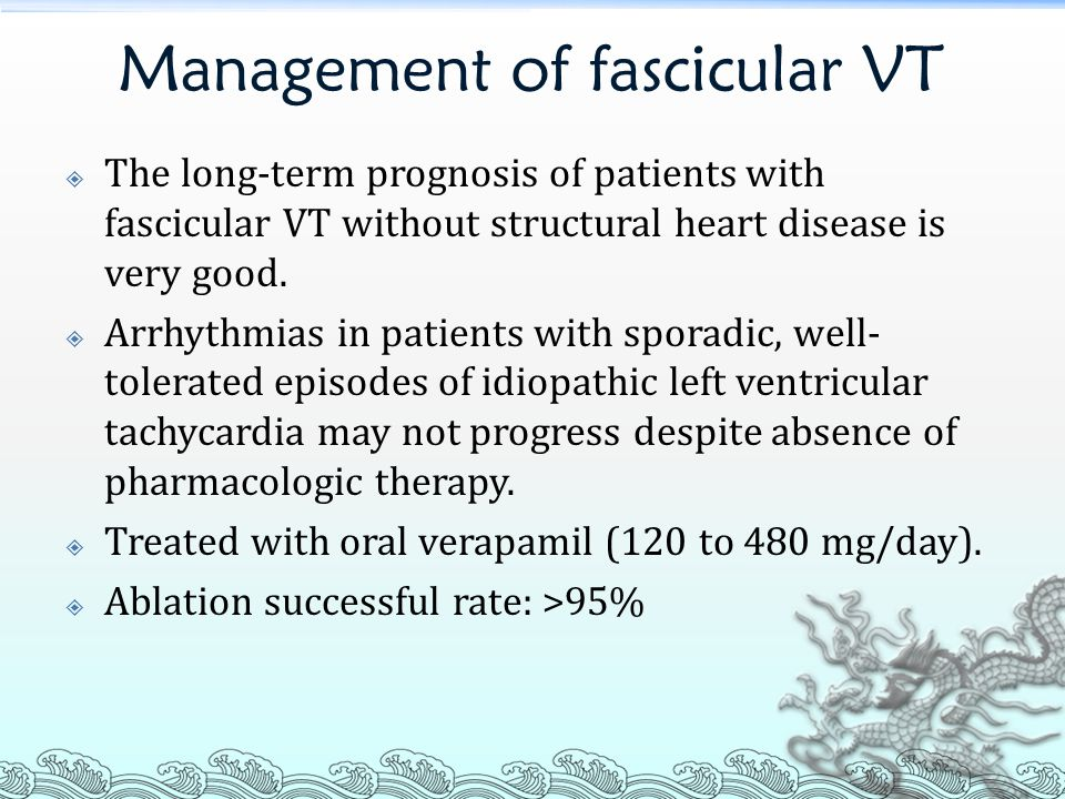 Management of fascicular VT