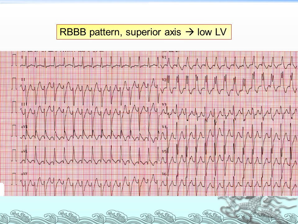 RBBB pattern, superior axis  low LV