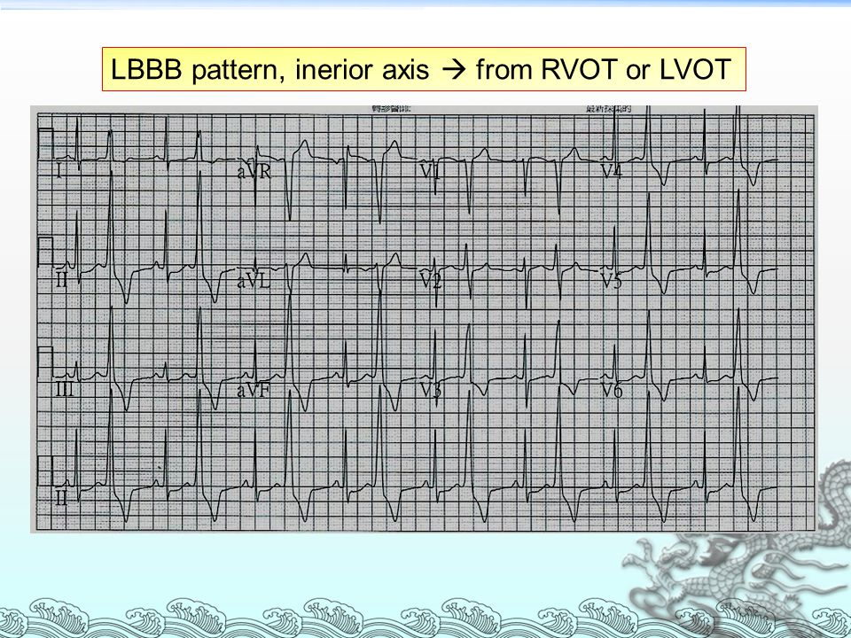 LBBB pattern, inerior axis  from RVOT or LVOT
