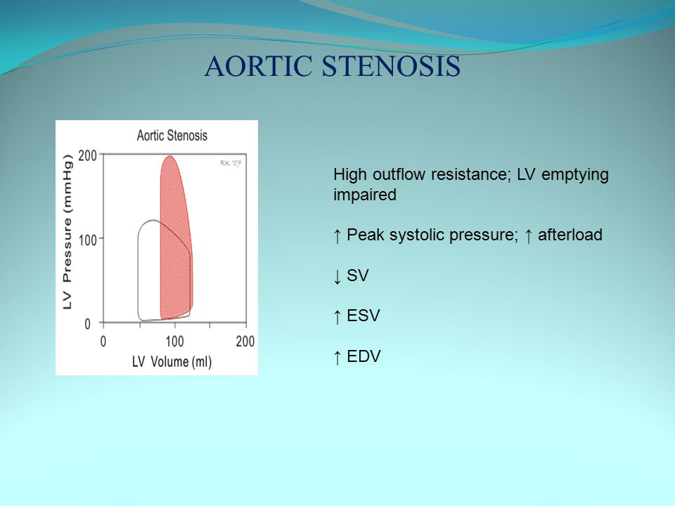 AORTIC STENOSIS High outflow resistance; LV emptying impaired
