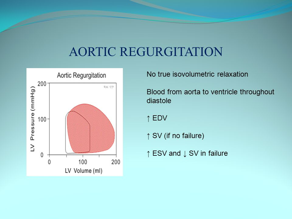 AORTIC REGURGITATION No true isovolumetric relaxation