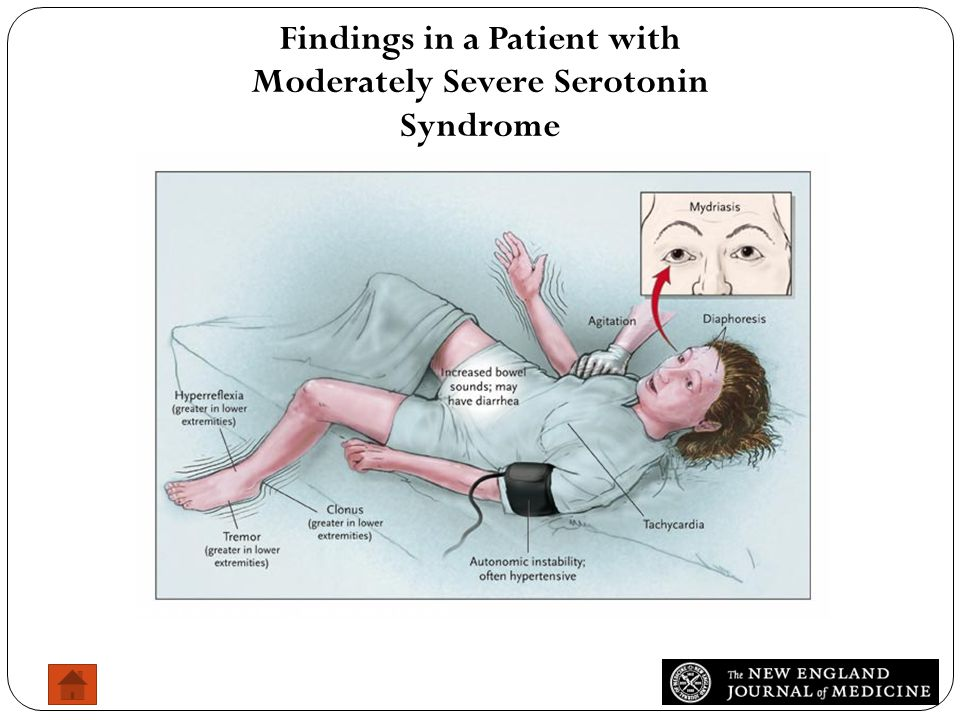 Findings in a Patient with Moderately Severe Serotonin Syndrome