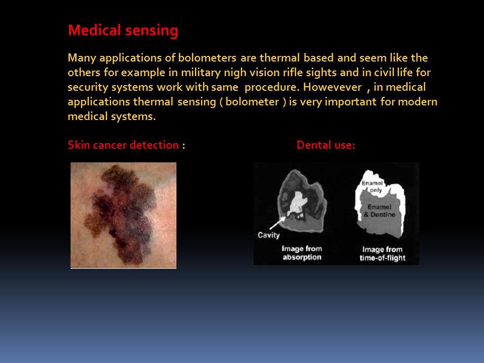 Medical sensing