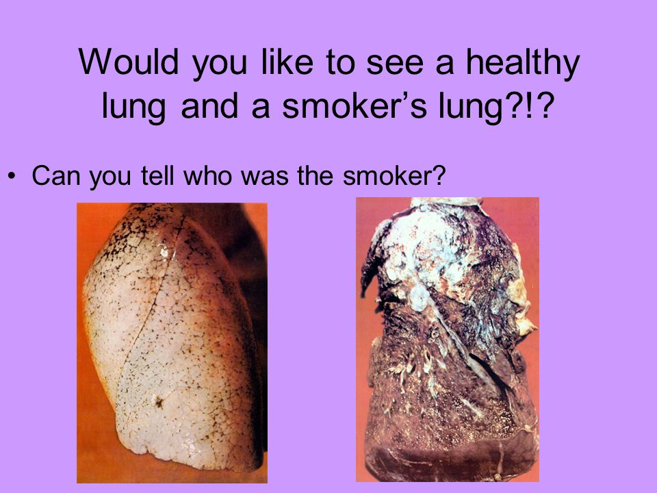 Would you like to see a healthy lung and a smoker's lung !