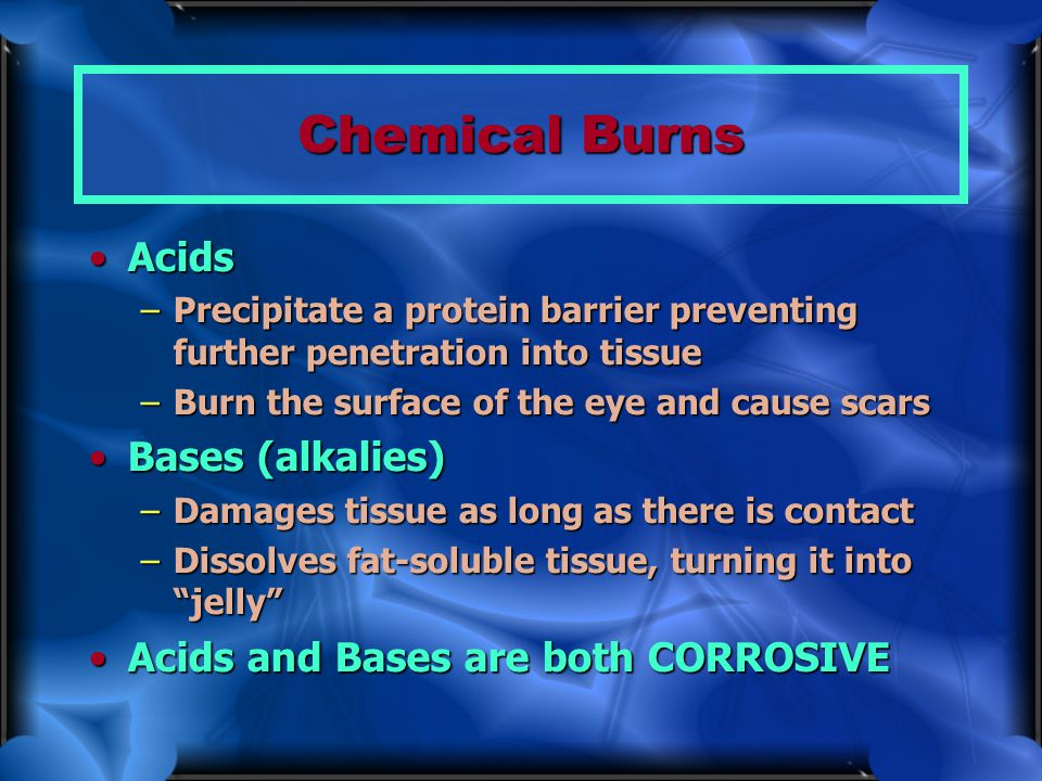 Chemical Burns Acids Bases (alkalies)