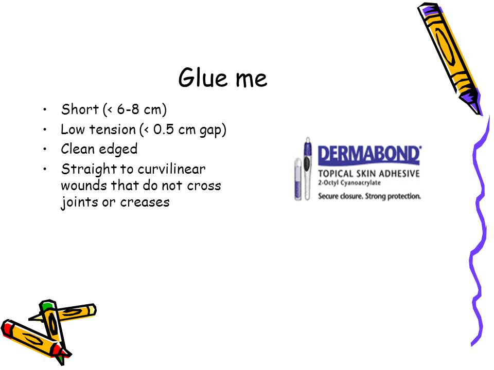 Glue me Short (< 6-8 cm) Low tension (< 0.5 cm gap) Clean edged