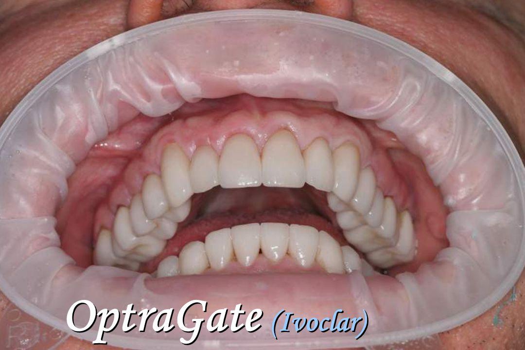 OptraGate (Ivoclar)