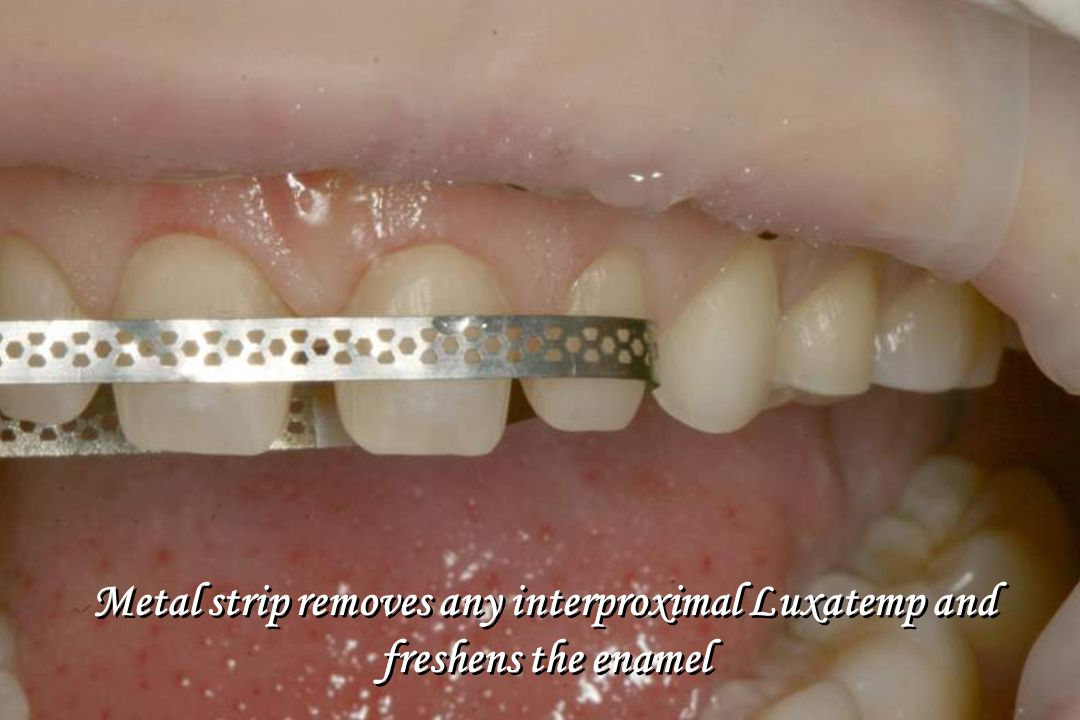 Metal strip removes any interproximal Luxatemp and freshens the enamel
