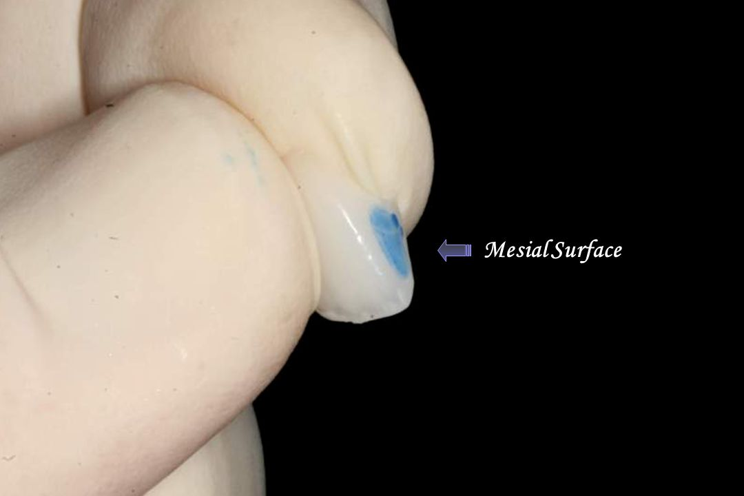 Mesial Surface Dry Erase Marker